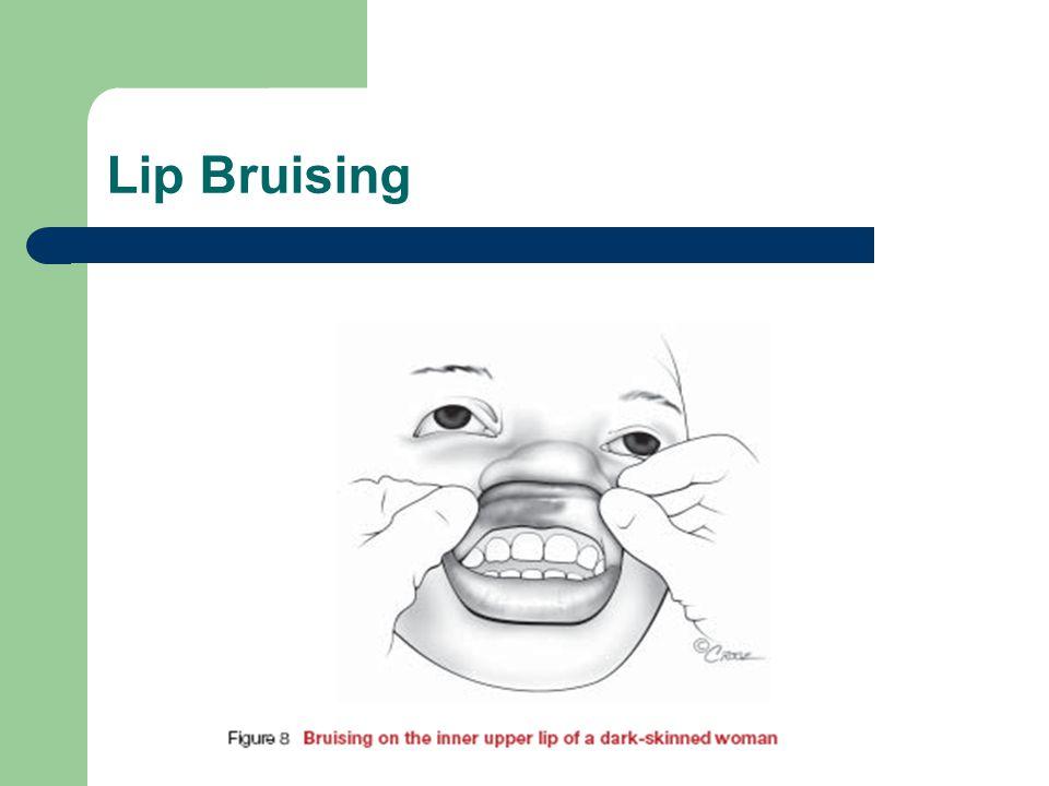 Lip Bruising
