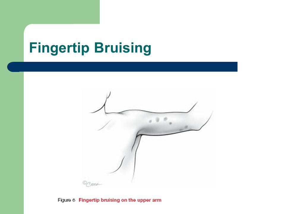 Fingertip Bruising