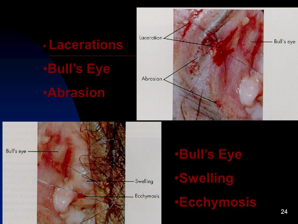 24 Lacerations Bull's Eye Abrasion Bull's Eye Swelling Ecchymosis