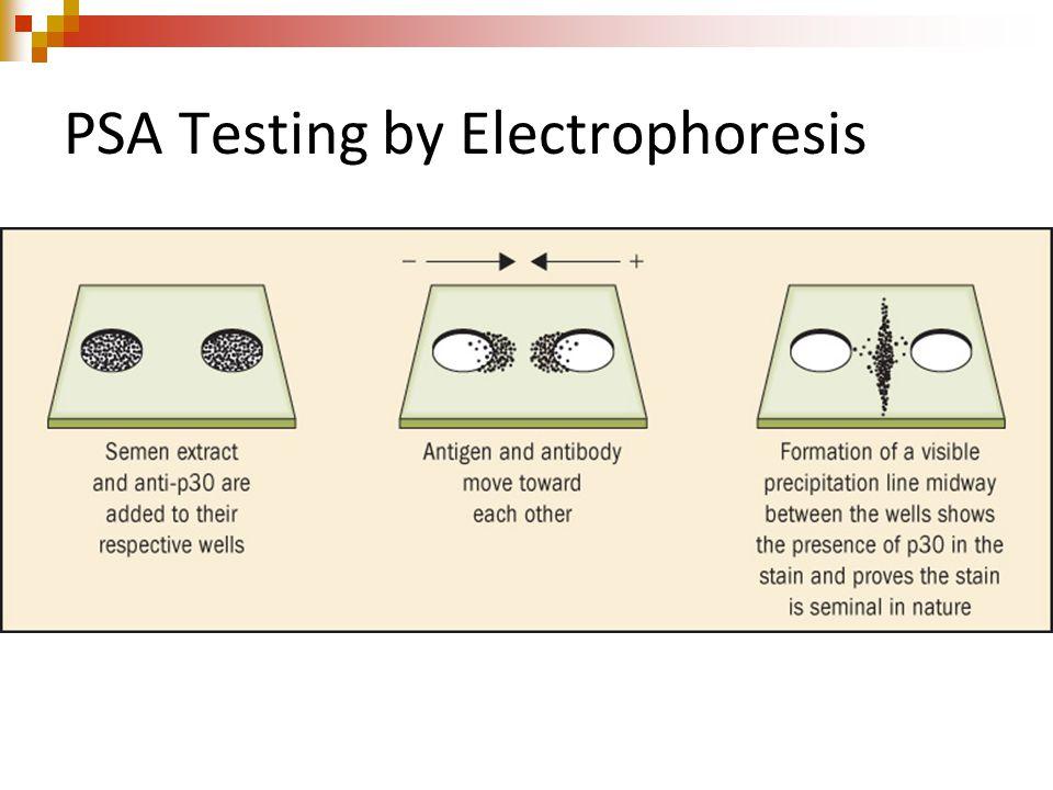PSA Testing by Electrophoresis