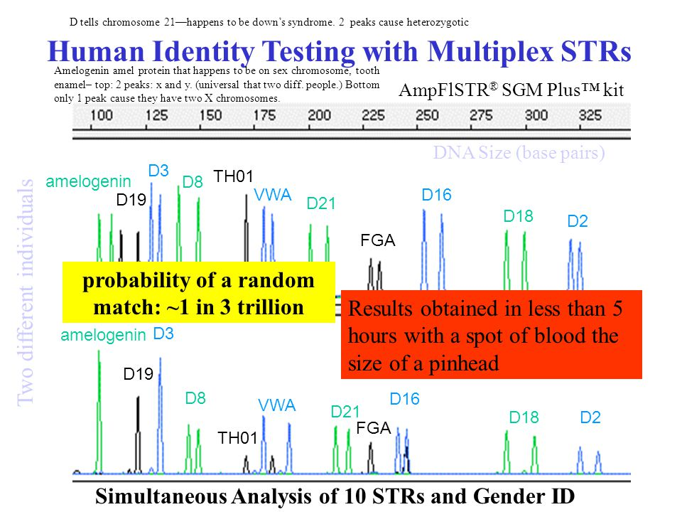 amelogenin D19 D3 D8 TH01 VWA D21 FGA D16 D18D2 amelogenin D19 D3 D8 TH01 VWA D21 FGA D16 D18 D2 Two different individuals DNA Size (base pairs) Results obtained in less than 5 hours with a spot of blood the size of a pinhead probability of a random match: ~1 in 3 trillion Human Identity Testing with Multiplex STRs Simultaneous Analysis of 10 STRs and Gender ID AmpFlSTR ® SGM Plus™ kit D tells chromosome 21—happens to be down's syndrome.
