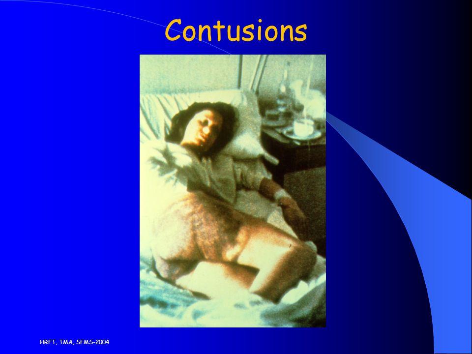 HRFT, TMA, SFMS-2004 Contusions
