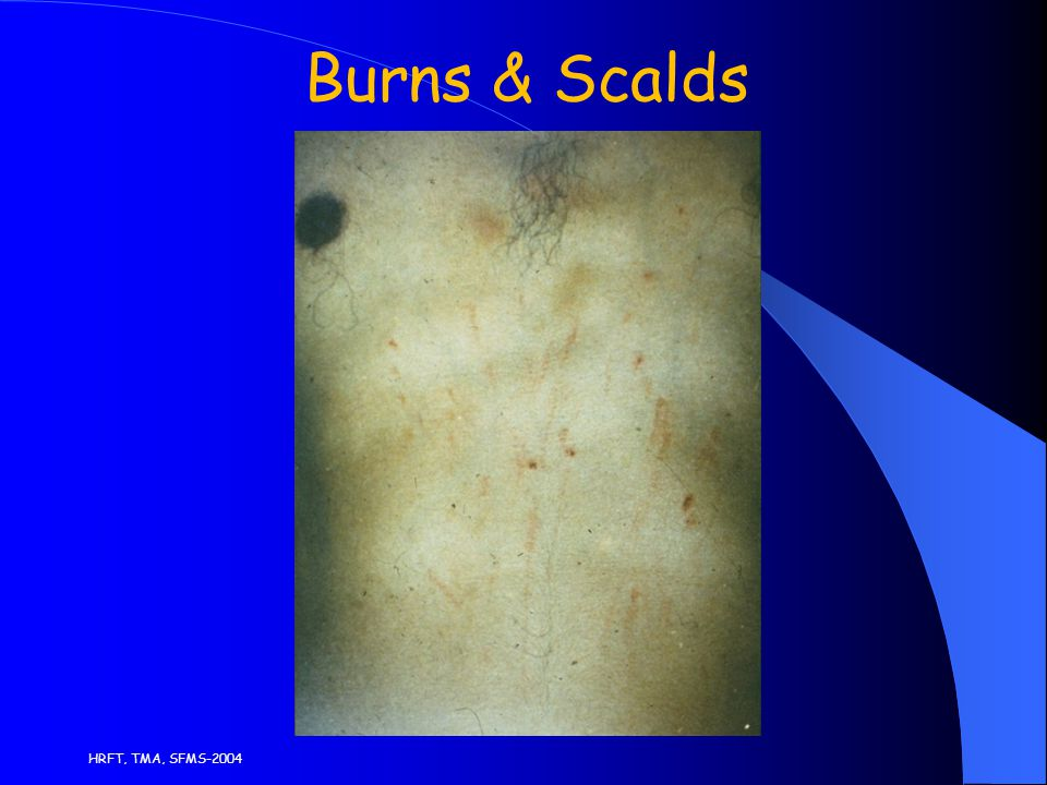 HRFT, TMA, SFMS-2004 Burns & Scalds