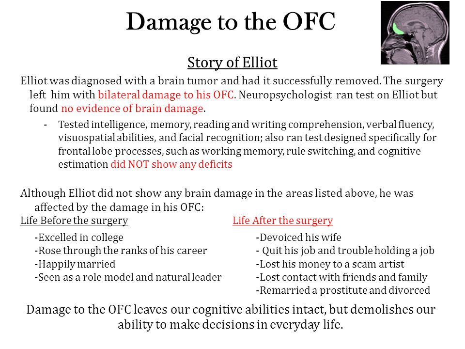 Damage to the OFC Story of Elliot Elliot was diagnosed with a brain tumor and had it successfully removed. The surgery left him with bilateral damage