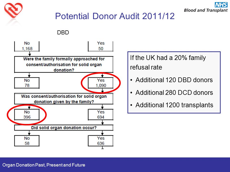 Organ Donation Past, Present and Future Potential Donor Audit 2011/12 If the UK had a 20% family refusal rate Additional 120 DBD donors Additional 280 DCD donors Additional 1200 transplants DBD