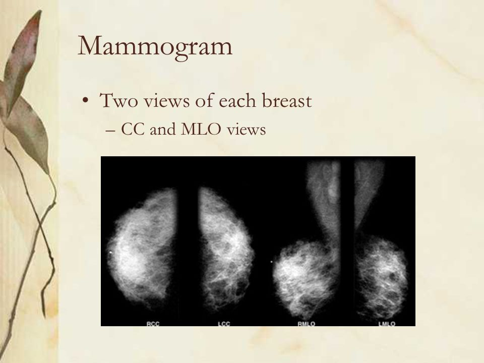 Mammogram Two views of each breast –CC and MLO views