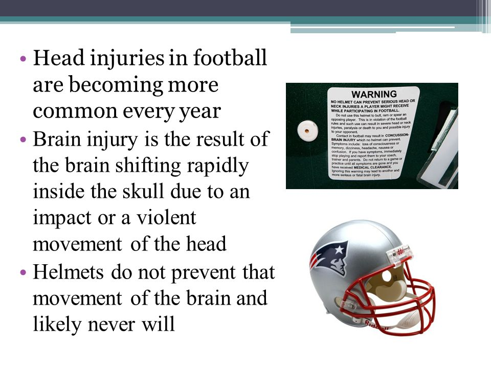 Introduction Head injuries in football are becoming more common every year Brain injury is the result of the brain shifting rapidly inside the skull due to an impact or a violent movement of the head Helmets do not prevent that movement of the brain and likely never will