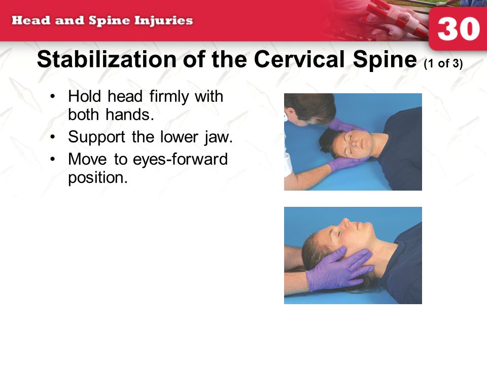Stabilization of the Cervical Spine (1 of 3) Hold head firmly with both hands.