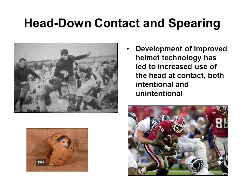 Head-Down Contact and Spearing Development of improved helmet technology has led to increased use of the head at contact, both intentional and unintentional