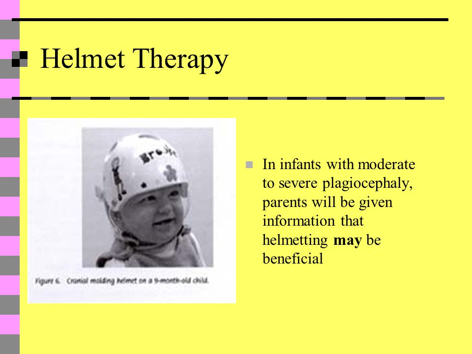 Helmet Therapy In infants with moderate to severe plagiocephaly, parents will be given information that helmetting may be beneficial