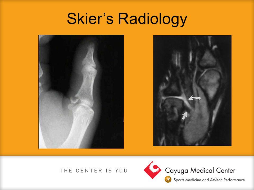 Skier's Radiology