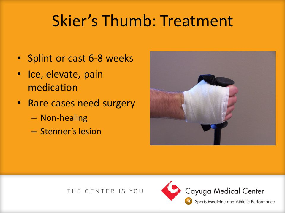 Skier's Thumb: Treatment Splint or cast 6-8 weeks Ice, elevate, pain medication Rare cases need surgery – Non-healing – Stenner's lesion