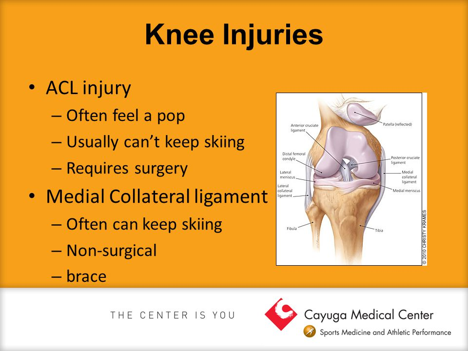 Knee Injuries ACL injury – Often feel a pop – Usually can't keep skiing – Requires surgery Medial Collateral ligament – Often can keep skiing – Non-surgical – brace
