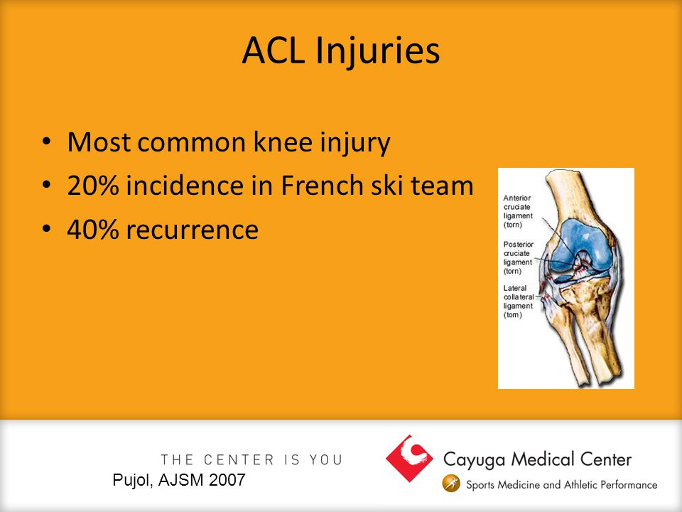 ACL Injuries Most common knee injury 20% incidence in French ski team 40% recurrence Pujol, AJSM 2007