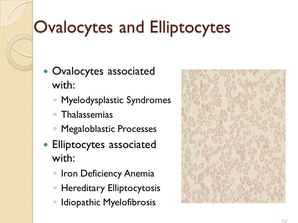 Ovalocytes and Elliptocytes Ovalocytes associated with: ◦ Myelodysplastic Syndromes ◦ Thalassemias ◦ Megaloblastic Processes Elliptocytes associated with: ◦ Iron Deficiency Anemia ◦ Hereditary Elliptocytosis ◦ Idiopathic Myelofibrosis 12