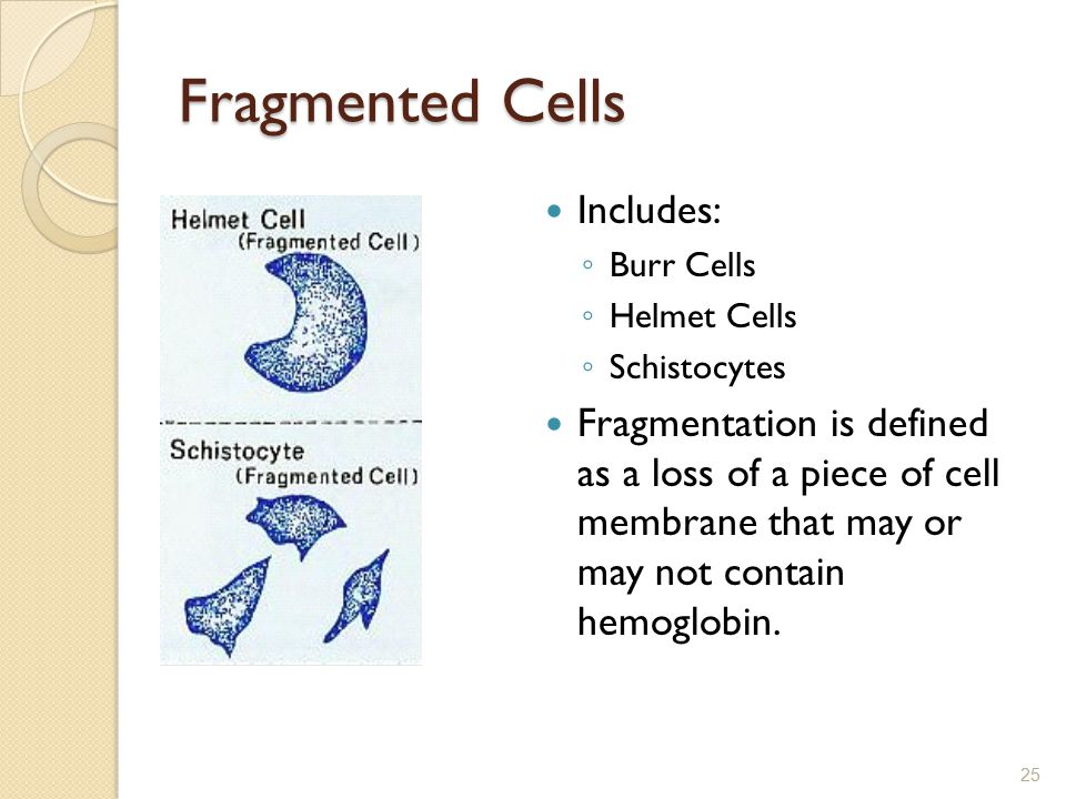 Fragmented Cells Includes: ◦ Burr Cells ◦ Helmet Cells ◦ Schistocytes Fragmentation is defined as a loss of a piece of cell membrane that may or may n