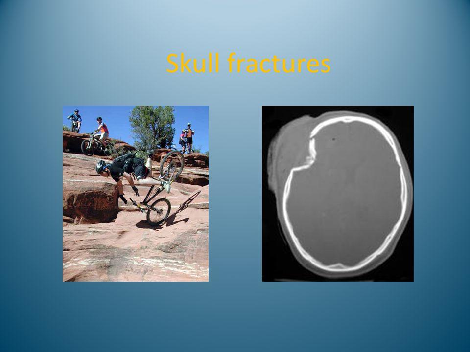 Skull fractures