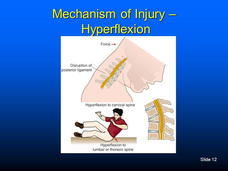 Slide 12 Mechanism of Injury – Hyperflexion