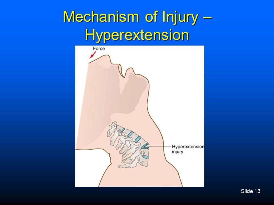 Slide 13 Mechanism of Injury – Hyperextension
