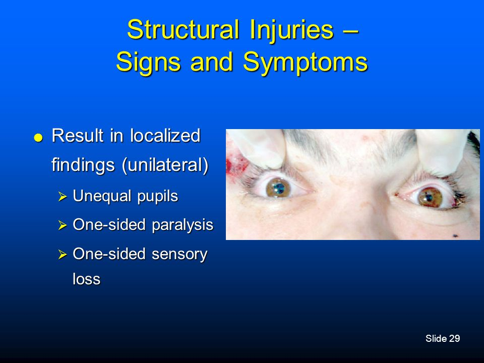 Slide 29 Structural Injuries – Signs and Symptoms  Result in localized findings (unilateral)  Unequal pupils  One-sided paralysis  One-sided senso