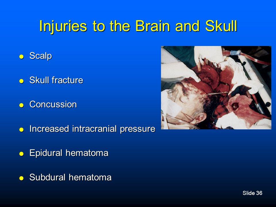 Slide 36 Injuries to the Brain and Skull  Scalp  Skull fracture  Concussion  Increased intracranial pressure  Epidural hematoma  Subdural hemato