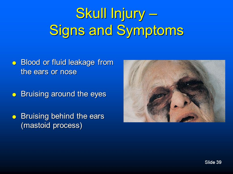 Slide 39 Skull Injury – Signs and Symptoms  Blood or fluid leakage from the ears or nose  Bruising around the eyes  Bruising behind the ears (masto