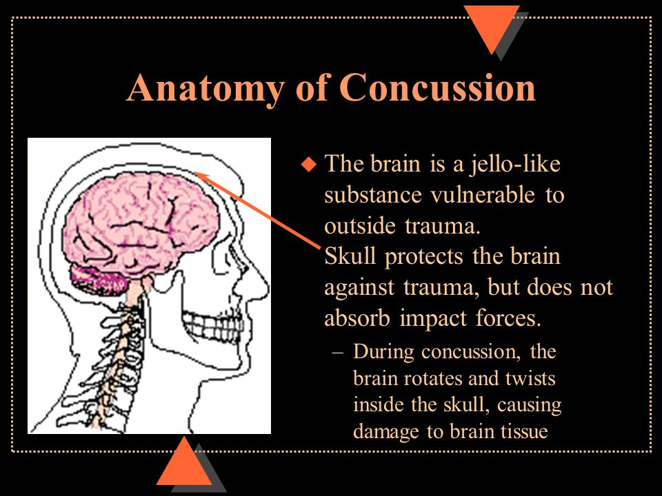 Anatomy of Concussion u The brain is a jello-like substance vulnerable to outside trauma. Skull protects the brain against trauma, but does not absorb