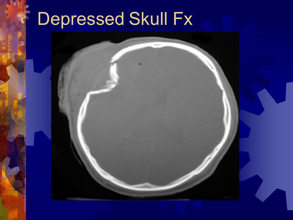 Depressed Skull Fx