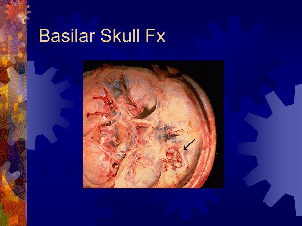 Basilar Skull Fx