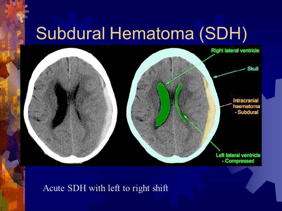 Subdural Hematoma (SDH) Acute SDH with left to right shift