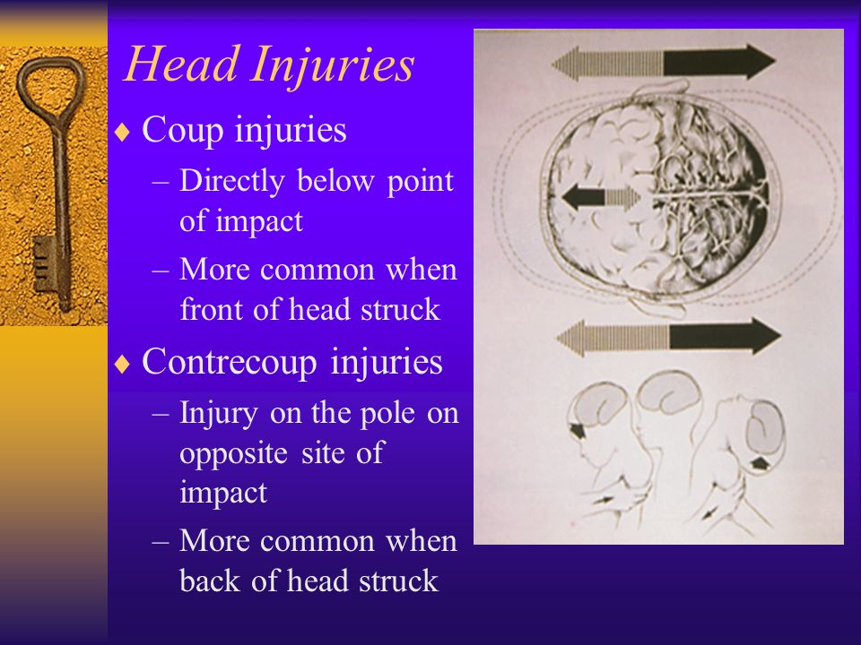 Head Injuries  Coup injuries –Directly below point of impact –More common when front of head struck  Contrecoup injuries –Injury on the pole on oppo