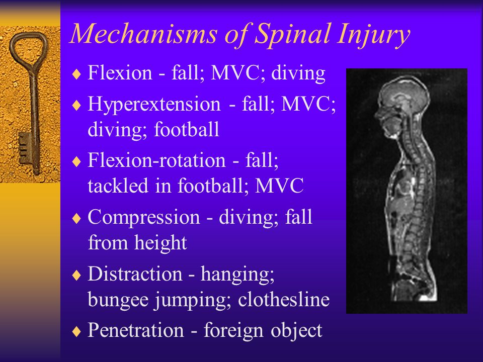 Mechanisms of Spinal Injury  Flexion - fall; MVC; diving  Hyperextension - fall; MVC; diving; football  Flexion-rotation - fall; tackled in footbal