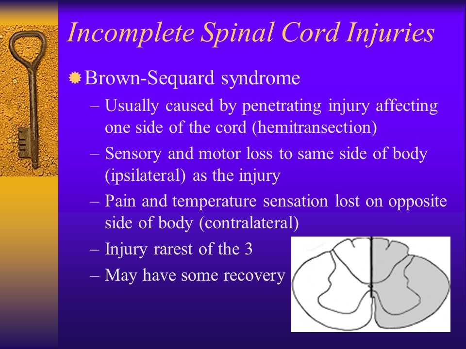 Incomplete Spinal Cord Injuries ® Brown-Sequard syndrome –Usually caused by penetrating injury affecting one side of the cord (hemitransection) –Senso