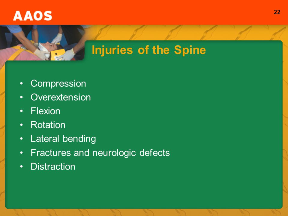 22 Injuries of the Spine Compression Overextension Flexion Rotation Lateral bending Fractures and neurologic defects Distraction