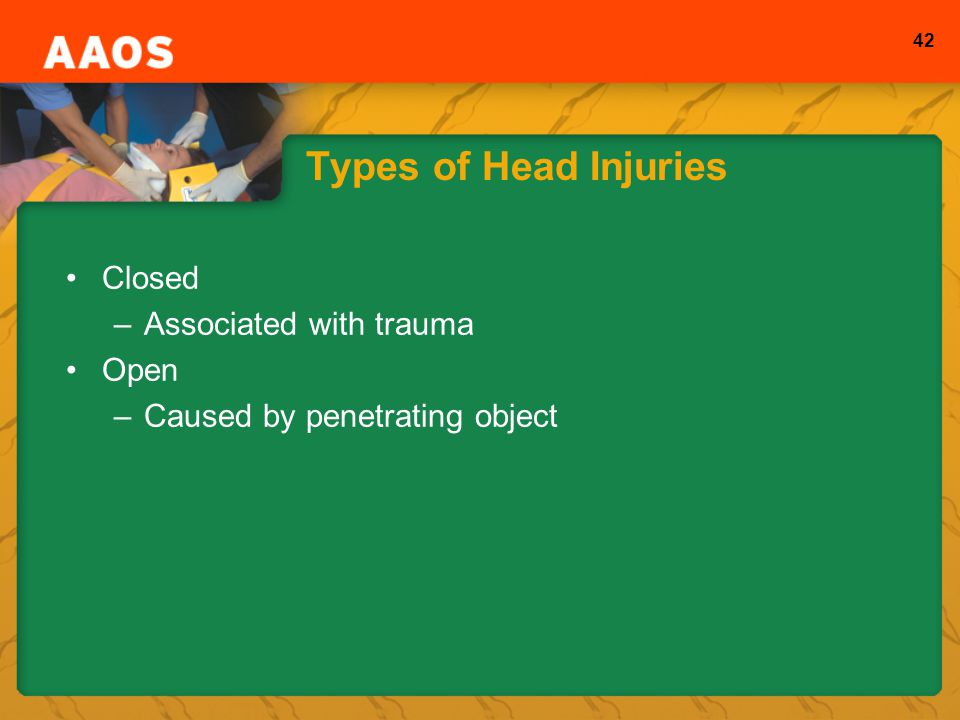 42 Types of Head Injuries Closed –Associated with trauma Open –Caused by penetrating object
