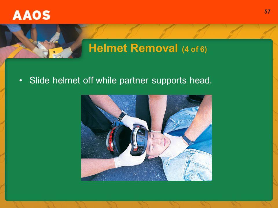 57 Helmet Removal (4 of 6) Slide helmet off while partner supports head.