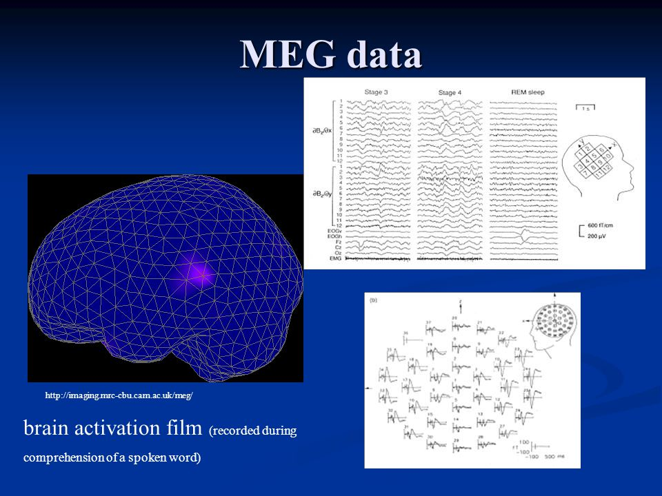 MEG data http://imaging.mrc-cbu.cam.ac.uk/meg/ brain activation film (recorded during comprehension of a spoken word)