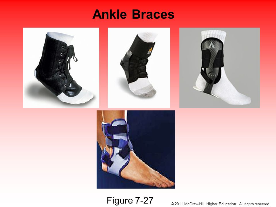 Ankle Braces Figure 7-27 © 2011 McGraw-Hill Higher Education. All rights reserved.
