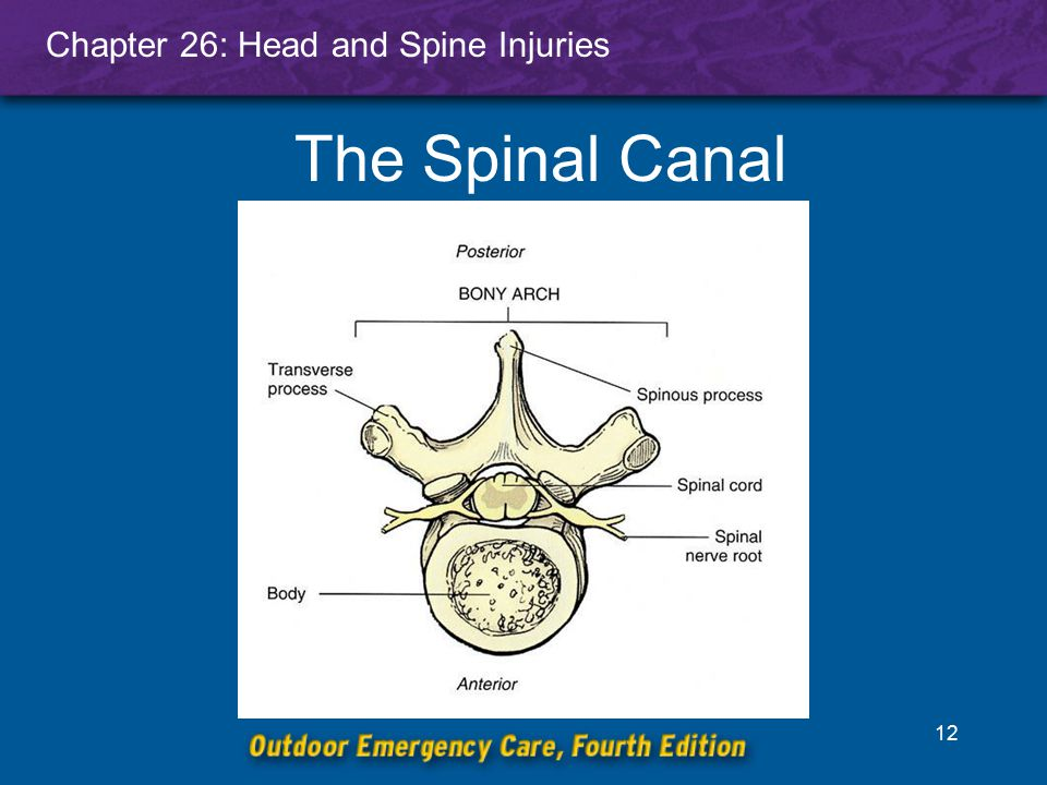 Chapter 26: Head and Spine Injuries 13 Assessment of Spinal Injuries Vehicle crashes (snowmobile, car, motorcycle) Snow rider collisions with fixed objects Snow rider collisions with other snow riders Falls from heights Blunt or penetrating trauma Blunt trauma Hangings Diving accidents