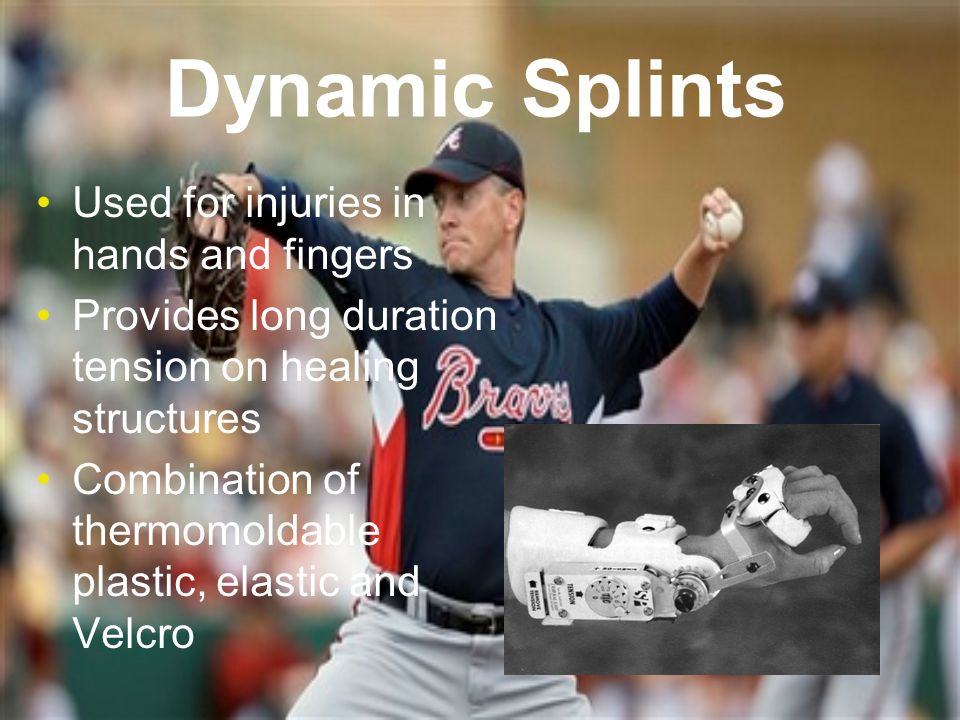 Dynamic Splints Used for injuries in hands and fingers Provides long duration tension on healing structures Combination of thermomoldable plastic, elastic and Velcro
