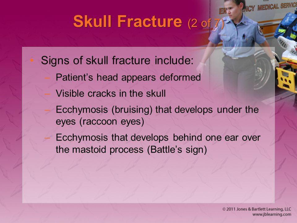 Skull Fracture (2 of 7) Signs of skull fracture include: –Patient's head appears deformed –Visible cracks in the skull –Ecchymosis (bruising) that dev