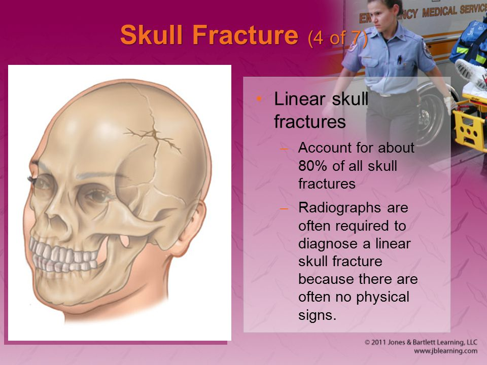 Skull Fracture (4 of 7) Linear skull fractures –Account for about 80% of all skull fractures –Radiographs are often required to diagnose a linear skul