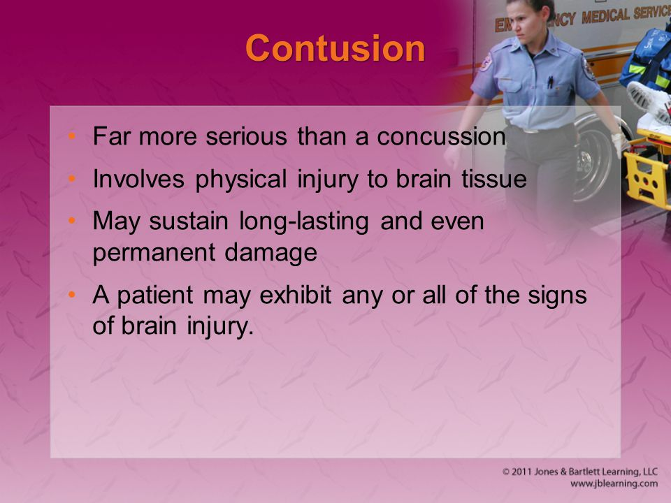 Contusion Far more serious than a concussion Involves physical injury to brain tissue May sustain long-lasting and even permanent damage A patient may