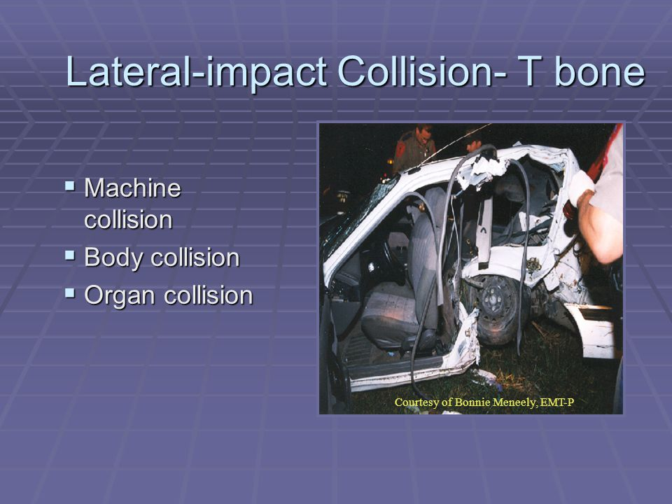 Lateral-impact Collision- T bone  Machine collision  Body collision  Organ collision Courtesy of Bonnie Meneely, EMT-P