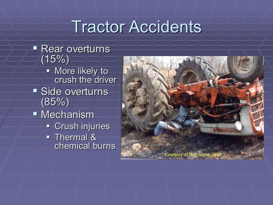 Tractor Accidents  Rear overturns (15%)  More likely to crush the driver  Side overturns (85%)  Mechanism  Crush injuries  Thermal & chemical burns sy of Roy Alson, M.D.