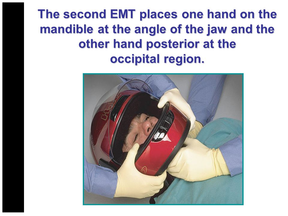 The second EMT places one hand on the mandible at the angle of the jaw and the mandible at the angle of the jaw and the other hand posterior at the oc