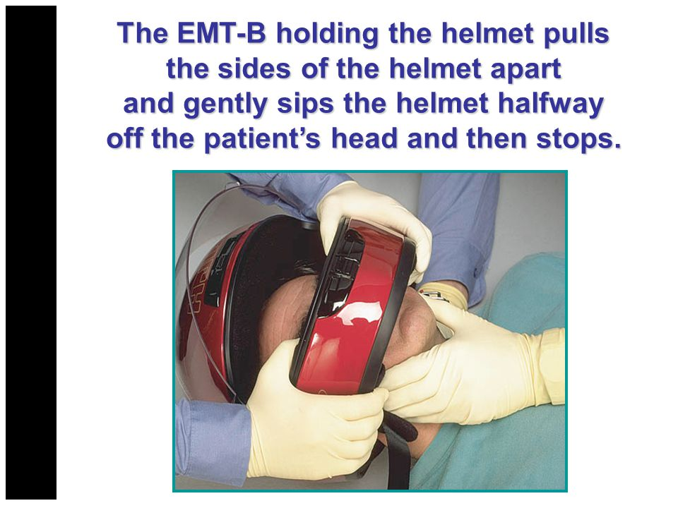 The EMT-B holding the helmet pulls the sides of the helmet apart and gently sips the helmet halfway off the patient's head and then stops.