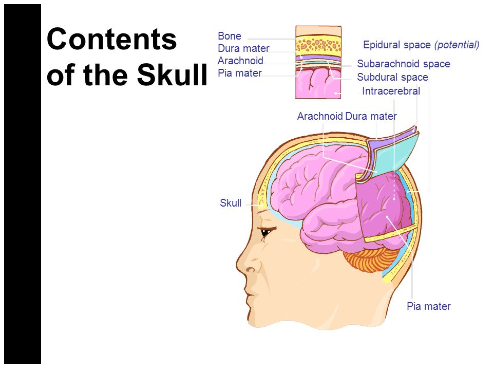 Contents of the Skull Bone Dura mater Arachnoid Pia mater Subarachnoid space Subdural space Intracerebral Epidural space (potential) Dura materArachno