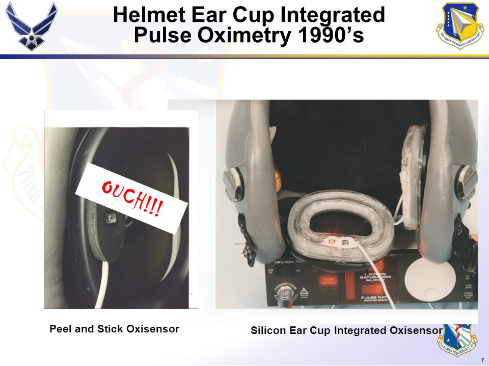 7 Helmet Ear Cup Integrated Pulse Oximetry 1990's Peel and Stick Oxisensor Silicon Ear Cup Integrated Oxisensor OUCH!!!