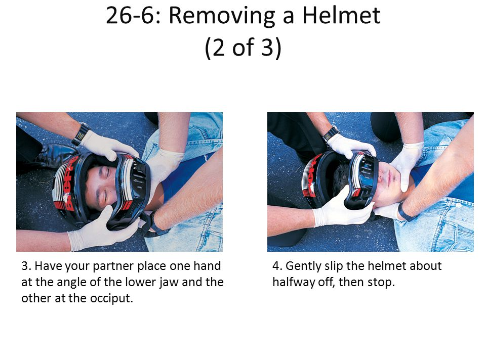 26-6: Removing a Helmet (2 of 3) Helmet (2 of 3) 3. Have your partner place one hand at the angle of the lower jaw and the other at the occiput. 4. Ge